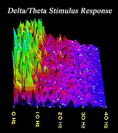 Delta/Theta Stimulus Response